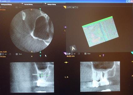 K90003D_screen_view_root_canals_teeth_imaging_Klym