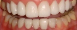 helen_After_teeth_veneers_close_up