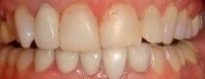 helen_BEFORE_dentistry_veneers_close_up