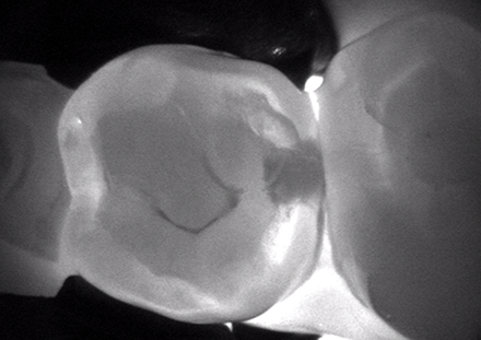 an x-ray of a tooth from the top