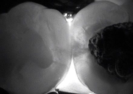 an X-ray of a tooth with a dark spot