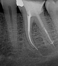 Dentist treats tooth pain, alleviates toothaches, hot cold sensitivity