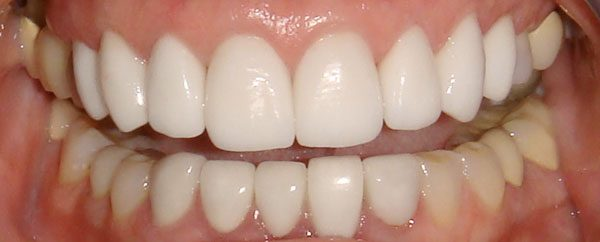 closeup of smile after a smile makeover using veneers