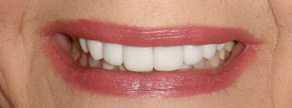 """After"" closeup of a smile that was cosmetically restored by Dr. Klym using veneers"