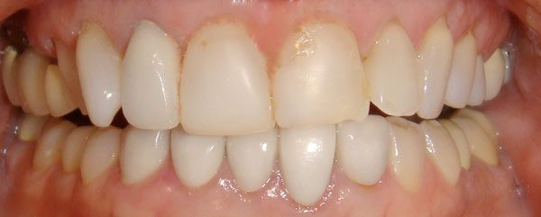 Picture of a Northwood Dental patient before her smile was restored with veneers.