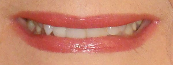 Helen smile makeover before
