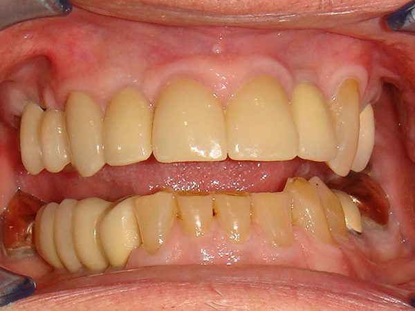 """After"" picture of a Northwood Dental patient with a restored smile."