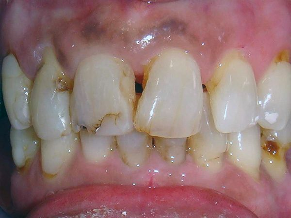 The severely damaged smile of a woman that would later be completely restored by Dr. Klym.