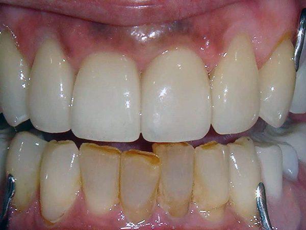 A severely damaged smile that has been partially restored by Dr. Klym at Northwood Dental.