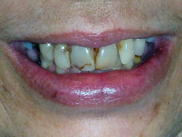 Severely damaged smile before the patient received cosmetic treatment at Northwood Dental.
