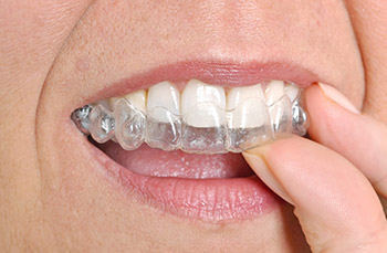 Invisalign Braces Fit