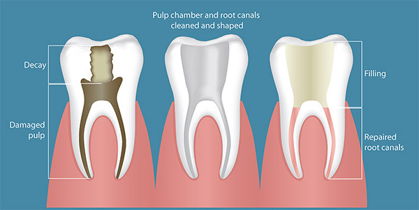 Root Canal Example