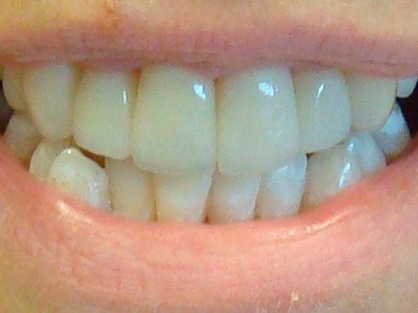 Closeup of a Northwood Dental patient showing off an attractive restored smile