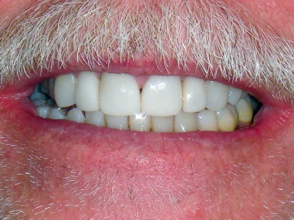 """After"" picture of the attractive bright smile of a male patient at Northwood Dental."
