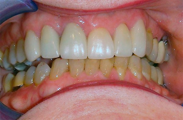 Closeup of a Northwood Dental patient with a restored smile, case 5