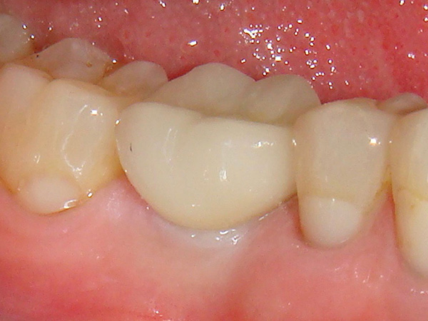 A molar that was restored with a dental implant by Dr.