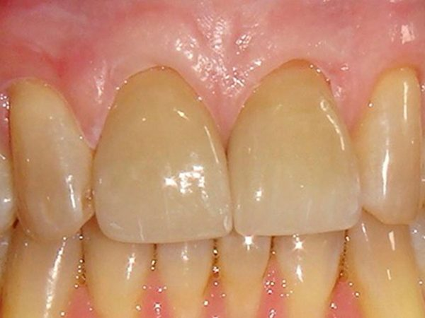 After picture of a patient whose smile was cosmetically restored by Dr. Klym at Northwood Dental.