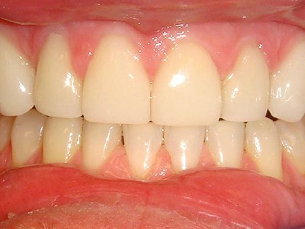 """After"" closeup of a patient with an attractive smile restored by Dr. Klym."