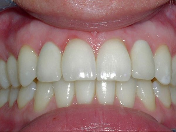"""After"" closeup of a man's smile that was cosmetically restored by Dr. Klym using dental implants and veneers."