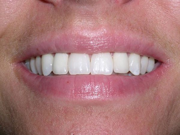 """After"" image of a man's smile that was cosmetically restored by Dr. Klym using dental implants and veneers."