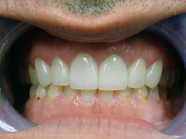 Closeup of implant patient at Northwood Dental.