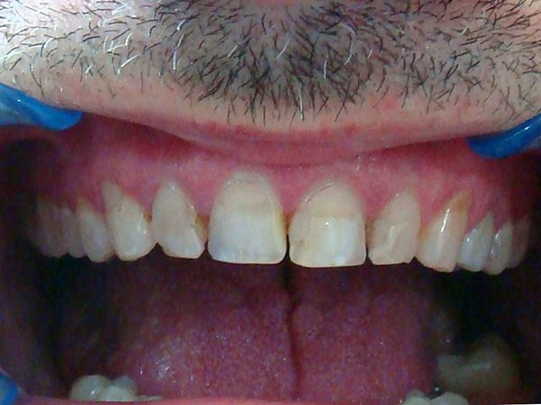Before picture of a patient whose smile was restored by Dr. Klym.