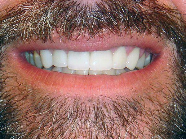 Case 15 after smile restoration