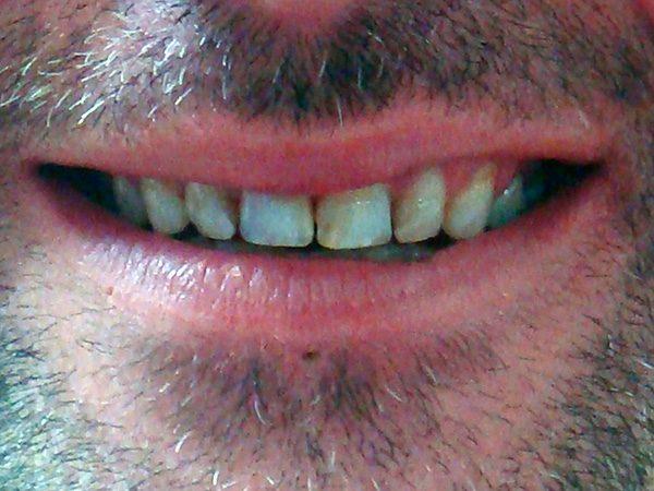 Case 15 before smile restoration