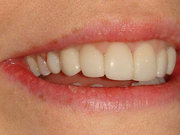 The attractive smile of a female patient that has been restored by Dr. Klym, case 16