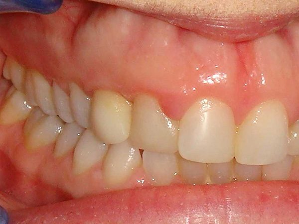 """Before"" picture of a smile that was later restored by Dr. Klym using cosmetic procedures."