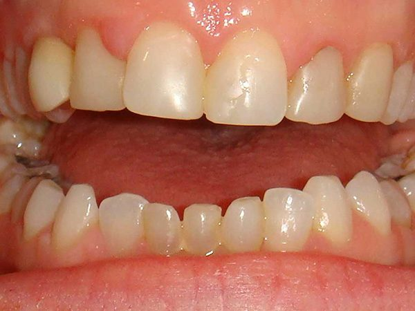 "Closeup of a ""before"" picture of a smile that was restored by Dr. Klym at Northwood Dental."