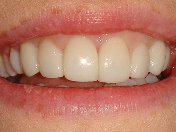 Closeup picture of a smile after restoration by Dr. Klym at Northwood Dental.