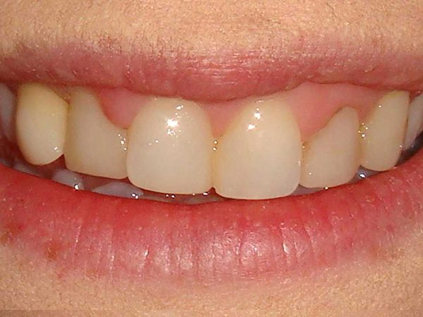 Closeup picture of a smile before it was restored by Dr. Klym at Northwood Dental.