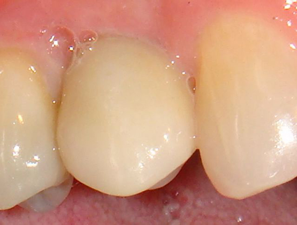 A dental implant placed in one of our Northwood dental patients by Dr. Klym.