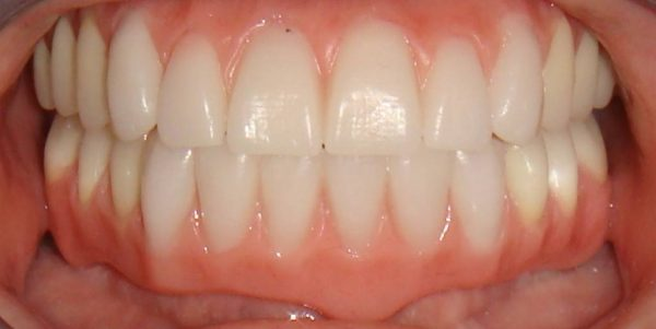 A Northwood Dental patient with an attractive restored smile.