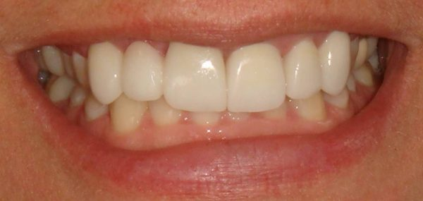 """After"" picture of the attractive smile of a female patient at Northwood Dental."