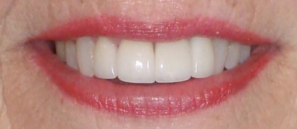 Closeup of a woman's smile that Dr. Klym restored using Invisalign, new crowns, and veneers.