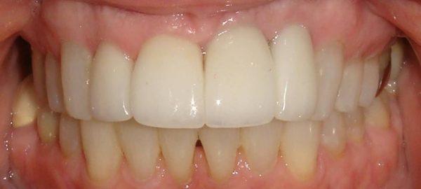 After image of a restored smile