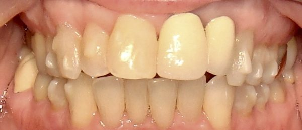 Before smile restoration