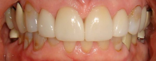 """After"" closeup of a cosmetic patient with a restored smile from Northwood Dental."