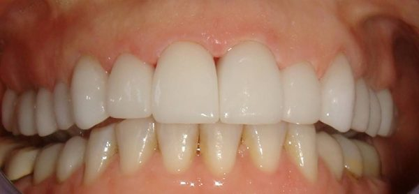 Closeup of a Northwood Dental patient with a restored smile
