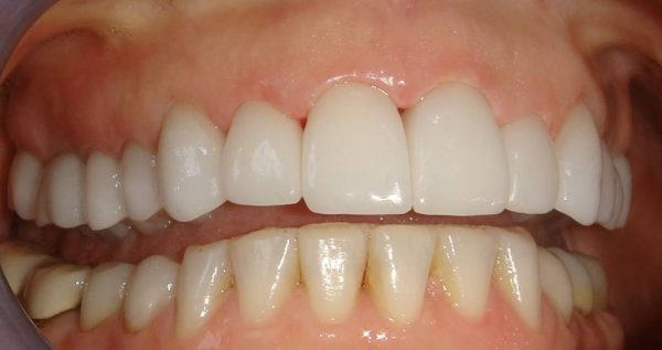 """After"" closeup of a smile that was cosmetically restored by Dr. Klym using crowns and veneers."