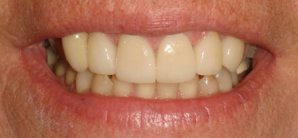 """After"" photo of Northwood Dental patient who got a smile makeover and instant orthodontics."