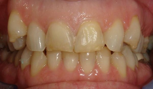 """Before"" closeup of a smile that was later cosmetically restored by Dr. Klym using instant orthodontics."